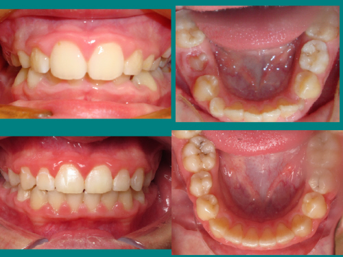 Ortho Compare 3